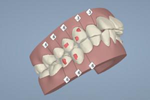 歯の移動を画像と動画で確認できるの画像