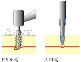 大口式(OAM)インプラントの画像