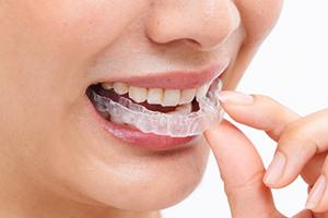 普通に歯磨き、洗浄も出来るから衛生的の画像