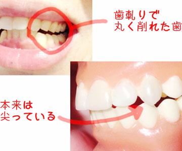 歯ぎしりのひどい方の画像