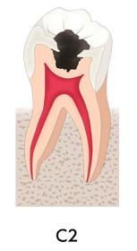 C2な歯画像