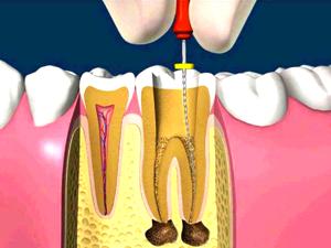 感染根管治療の画像