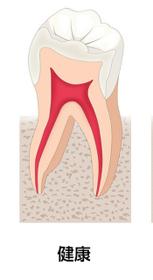 健康な歯画像