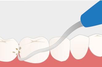 歯石除去の画像
