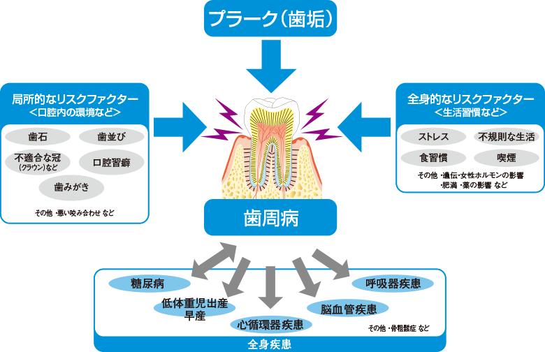 歯周病のリスクファクターの画像