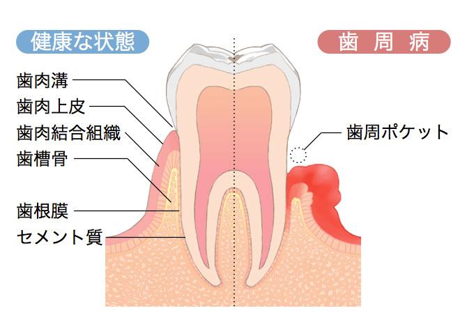 歯周病とはの画像