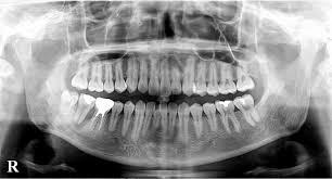 歯周病の当院の実践方法の画像
