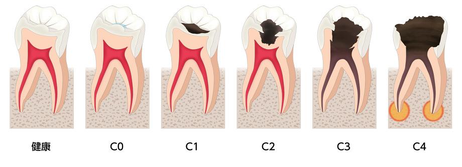 虫歯の進行状況別の治療内容の画像