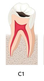 C1な歯画像
