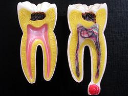 虫歯の影響~虫歯が病気をつくる~