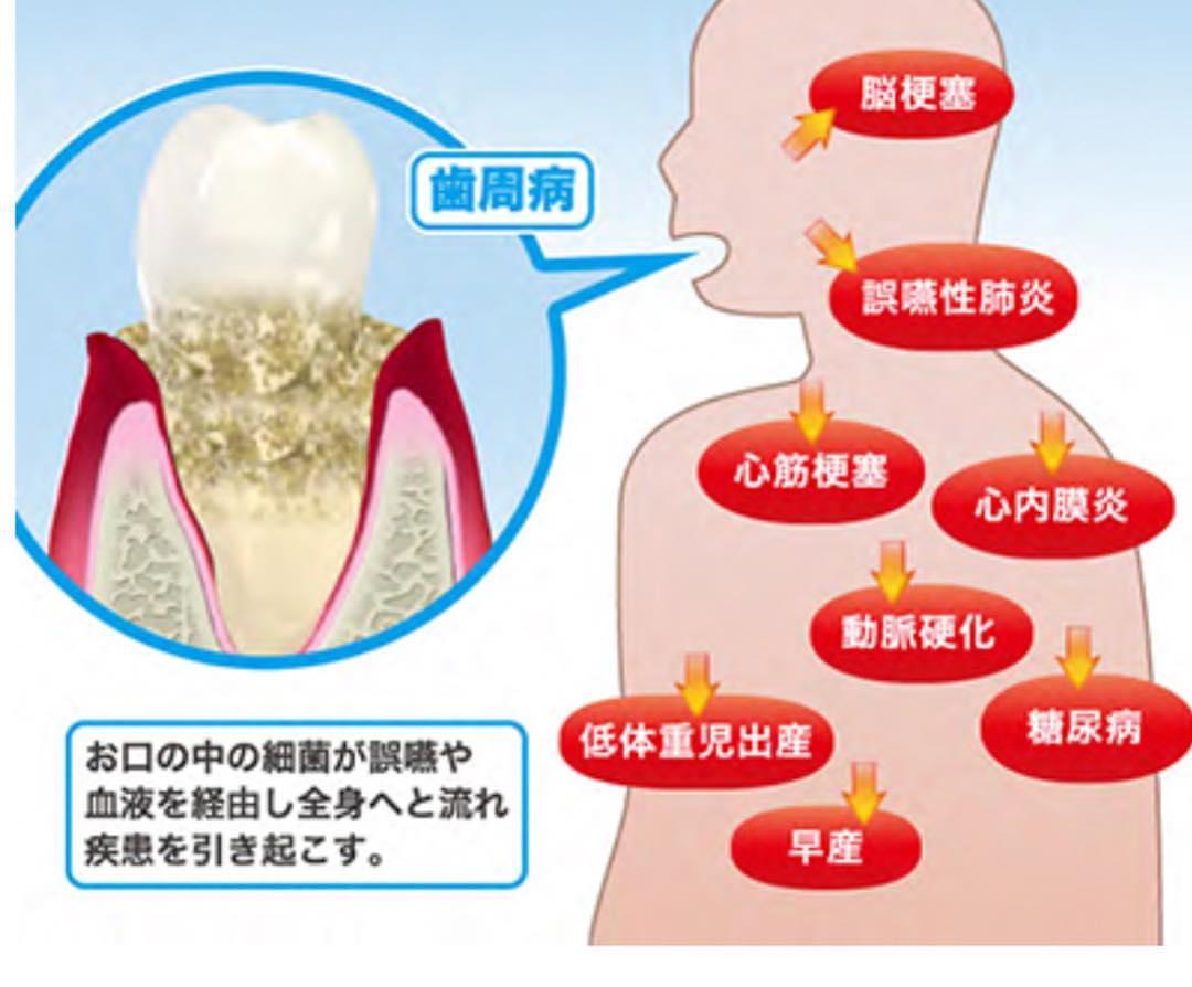 歯周病が全身に影響の画像