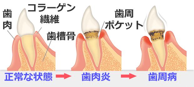 歯周病、気づかぬうちに進行の画像