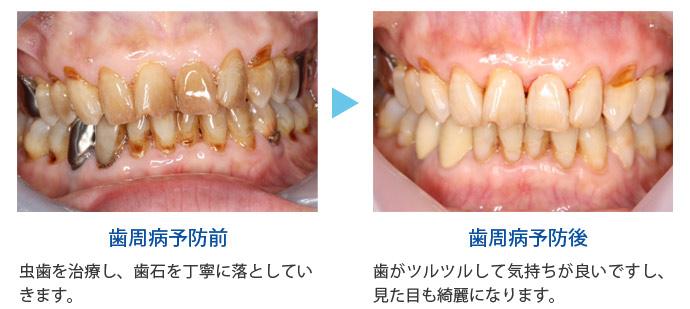 歯周病の進行段階の画像