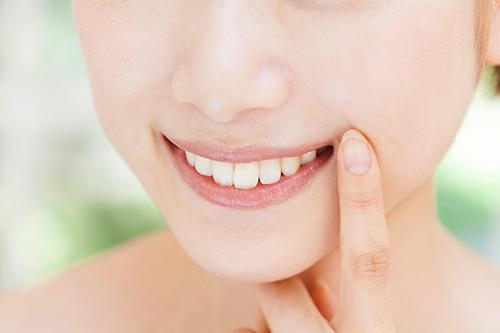 審美歯科とはの画像