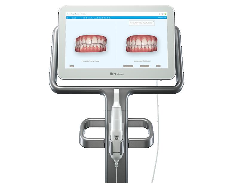 口腔内スキャナ―(iTero)の導入