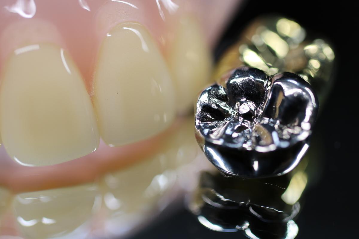 銀歯とセラミックの違い